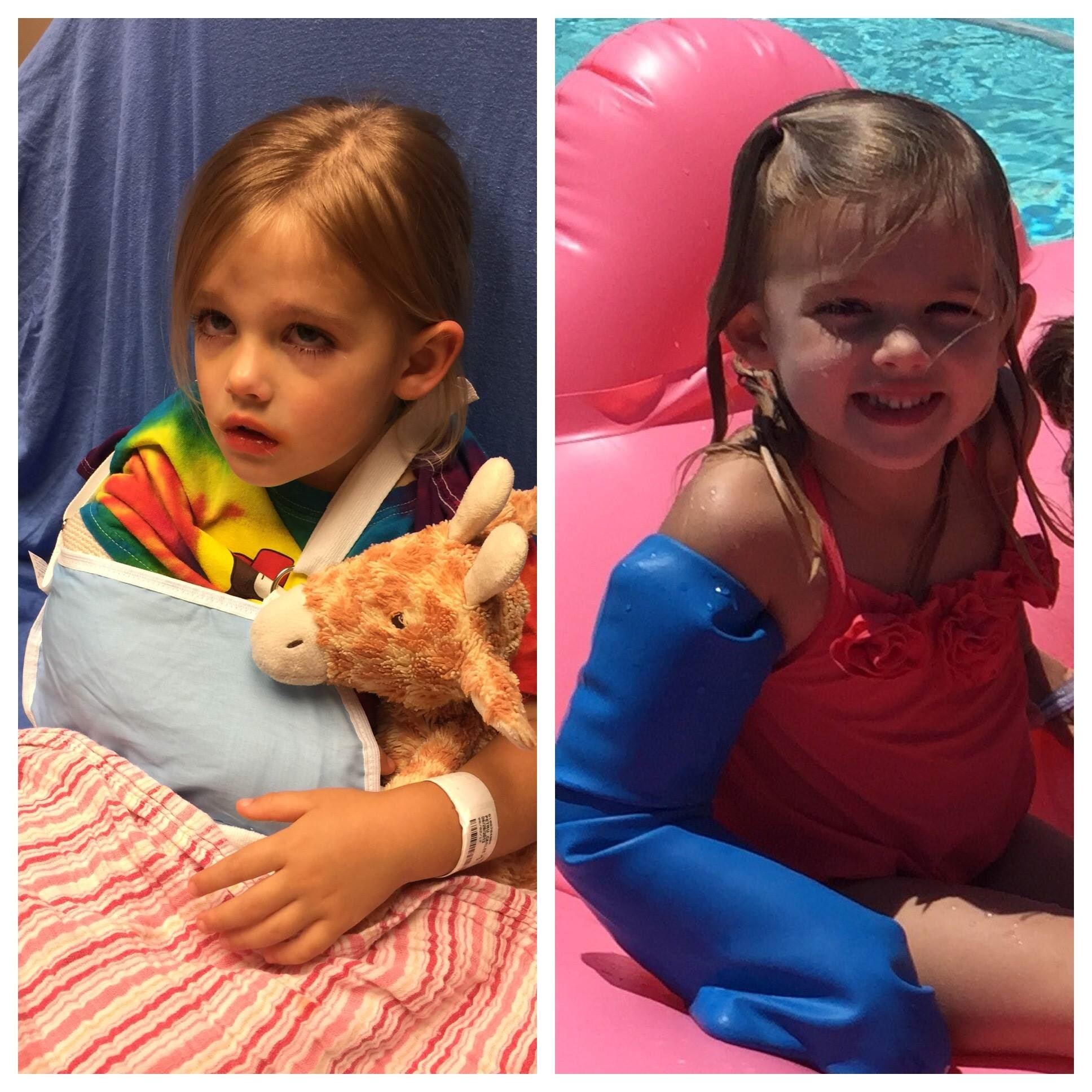a picture of a child with an arm in a sling and another of her smiling with a bloccs cast protector